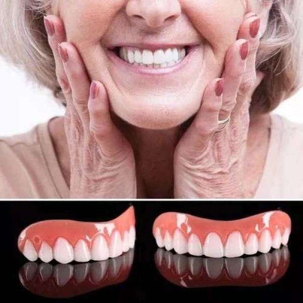 magic veneers